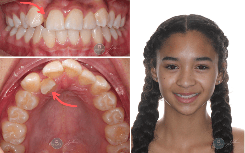 anterior crossbite treatment in Temecula
