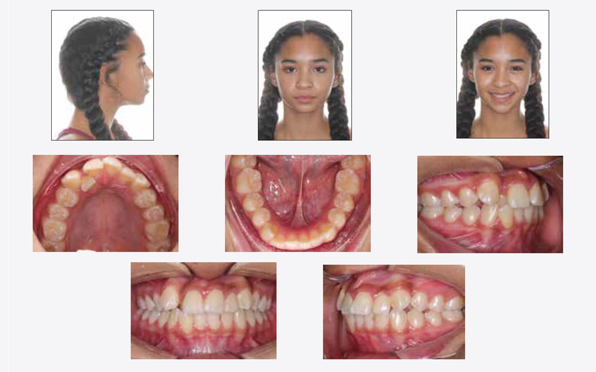 orthodontic-treatment-without-extraction-temecula