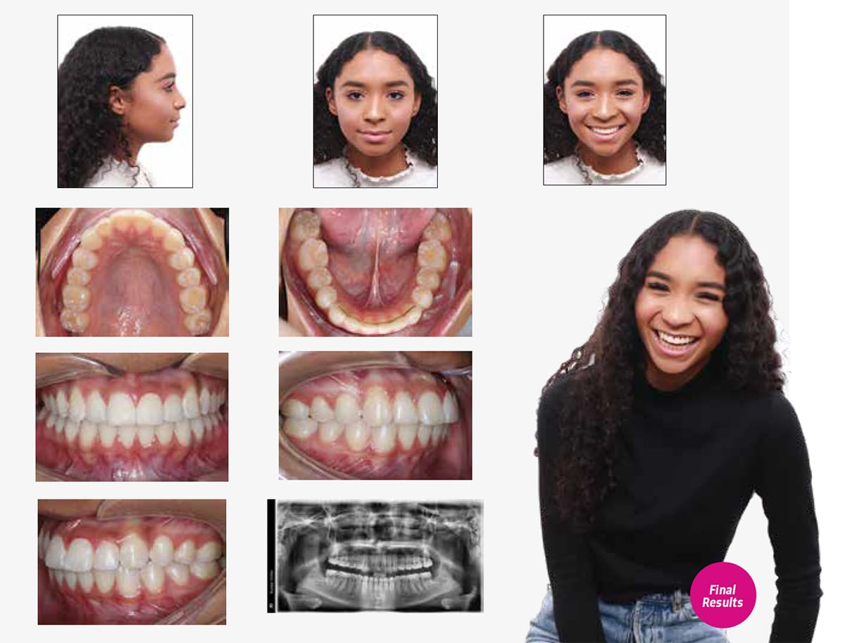 successful-results-orthodontic-treatment-temecula